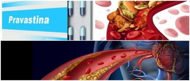 la pravastatina baja los trigliceridos