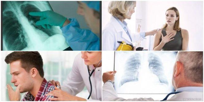 significado y definición de pulmonía