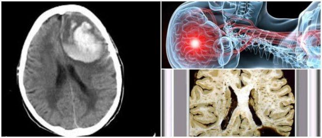 Que es la angiopatia amiloide cerebral