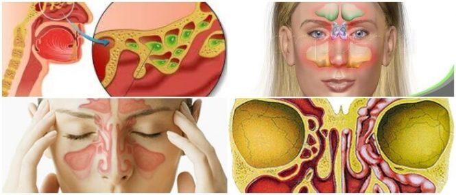 Rinosinusitis: Causas, Síntomas, Tipos, Diagnóstico