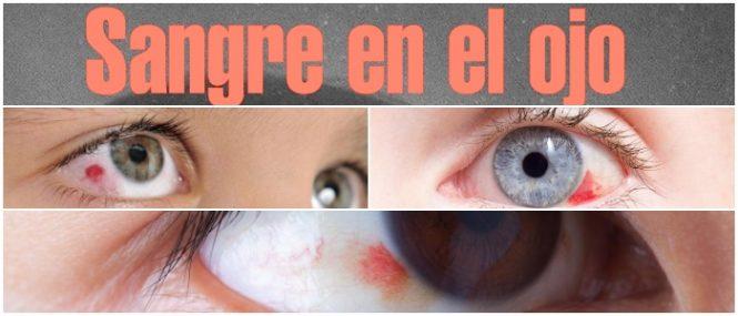 sangre en el ojo a que se debe
