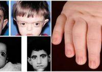 fisiopatologia del sindrome de bartter