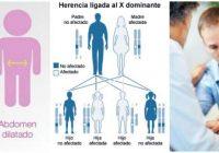genetica y el sindrome de hunter