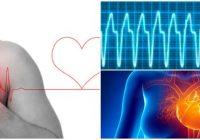 tratamiento de la taquicardia supraventricular