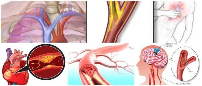 Que son las isquemias arteriales