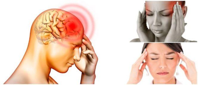 Existen varios tipos de migraña