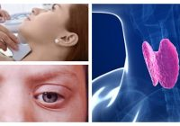 tirotoxicosis tratamiento