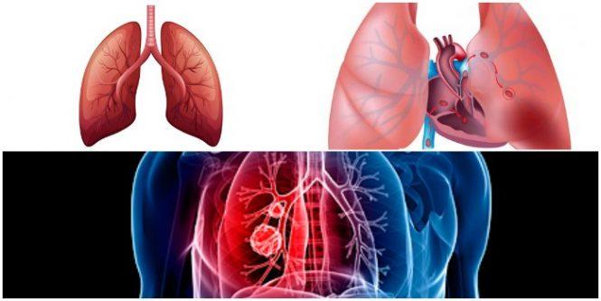 Causas y complicacioens de la tromboembolia pulmonar