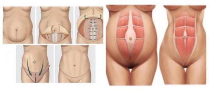 Ver fotos de una abdominoplastia 83
