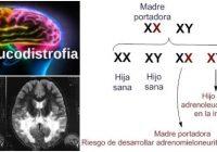 la adrenoleucodistrofia ligada al cromosoma x