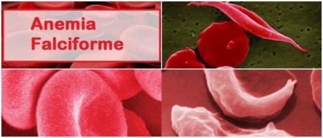 Anemia de células falciformes: Causas, Diagnóstico, Síntomas, Tratamiento y ...