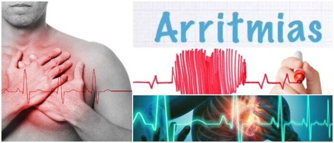 Arritmia Sinusal: ¿Qué Es? Síntomas, Causas, Diagnóstico, Tratamiento,  Complicaciones y Perspectiva – Arriba Salud