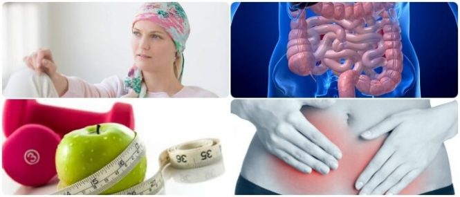 sintomas d cancer de intestino delgado