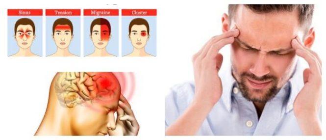 cefalalgia intensa