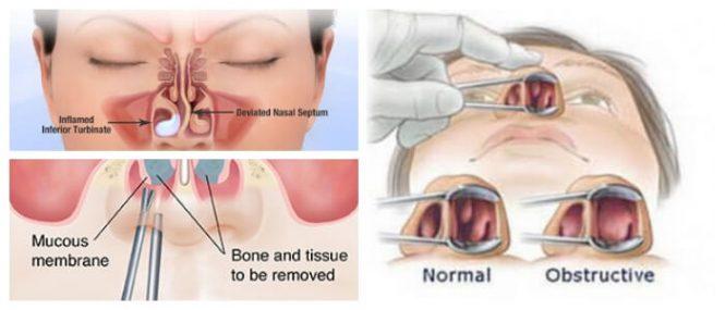 Cornetes: ¿Qué Son? Importancia, Resistencia Nasal, Turbinectomías y ...