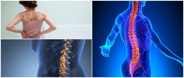Espina Dorsal  Anatom U00eda  Trastornos Comunes  S U00edntomas Y