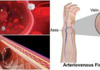 fístula arteriovenosa interna