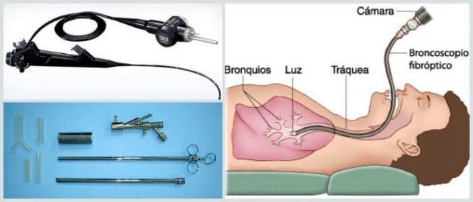 Fibrobroncoscopia: ¿Qué Es? Historia, Propósitos, Preparación ...