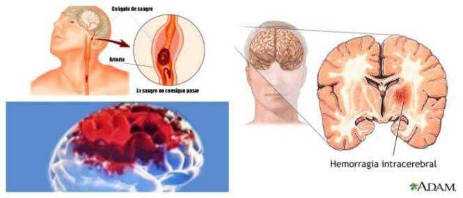 consecuencias de la hemorragia cerebral