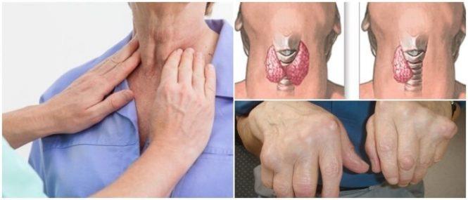 hipoparatiroidismo en los bebes