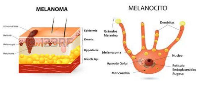 como recuperar los melanocitos