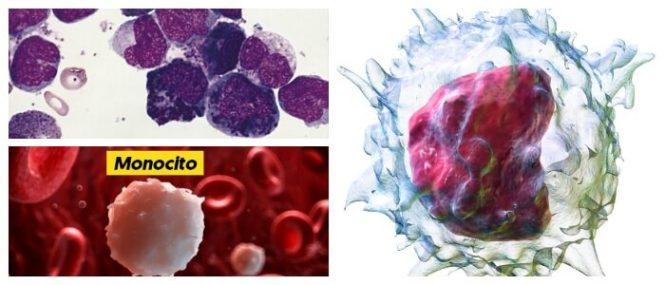 causas de los monocitos altos