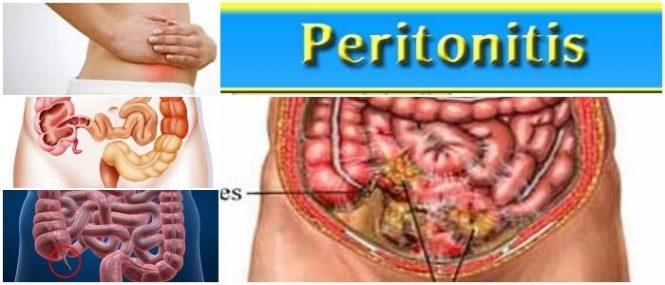 causas de una peritonitis