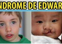 fenotipo del sindrome de edwards
