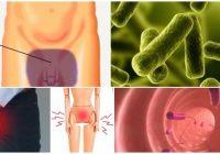antibioticos para el sindrome de fournier