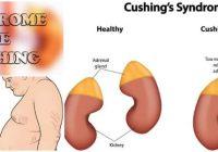 tratamientos para el síndrome de cushing