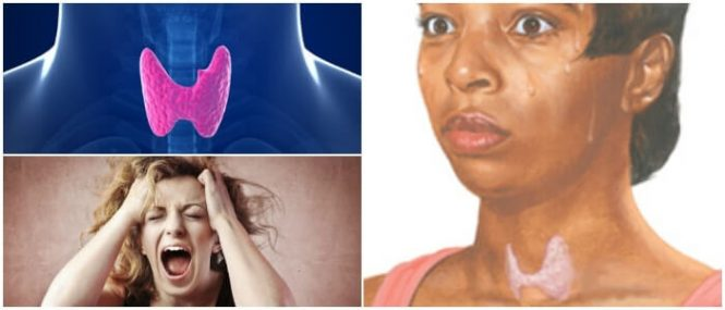 síntomas de hipertiroidismo en niños