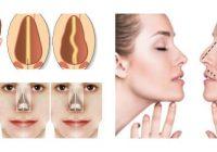 causas del tabique desviado