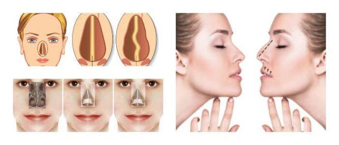 Tabique desviado causas s ntomas diagn stico - Como tirar un tabique ...