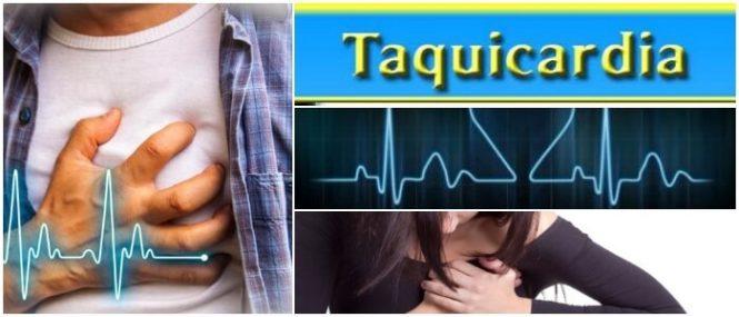 definicion de taquicardia ventricular