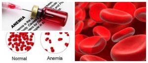 Tratamiento de la anemia consideraciones terapia nutricional y alimentos recomendados arriba - Anemia alimentos recomendados ...