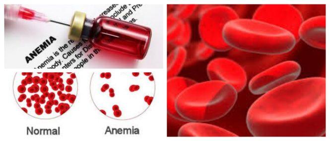 tratamiento de la anemia con hierro