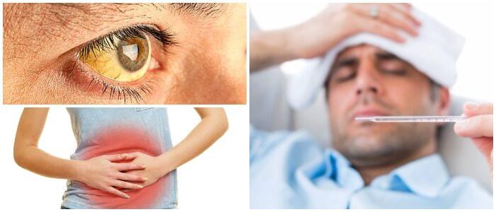 la triada de charcot y la esclerosis multiple