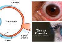 antibioticos para ulcera en el ojo