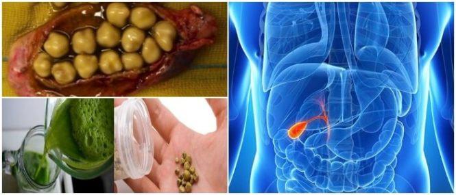 alimentos prohibidos para una vesicula inflamada