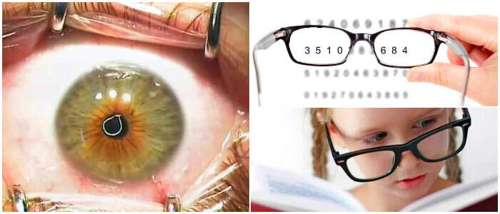 cirugía ocular para astigmatismo miópico