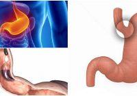 cual es la función del cardias