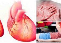 causas de la cardiomegalia