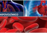 definición del choque hipovolémico