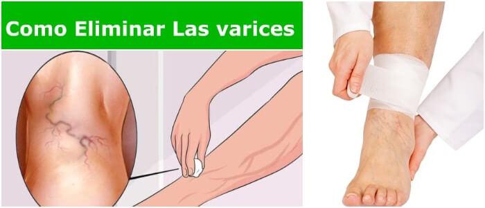 como eliminar las varices en las piernas naturalmente