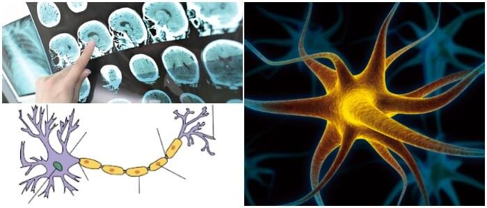 enfermedades desmielinizantes agudas del sistema nervioso central