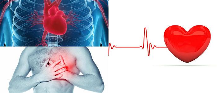 diagnóstico de la miocardiopatia dilatada