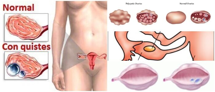Quistes En Los Ovarios: Definición, Síntomas, Diagnóstico, Causas y  Tratamiento – Arriba Salud