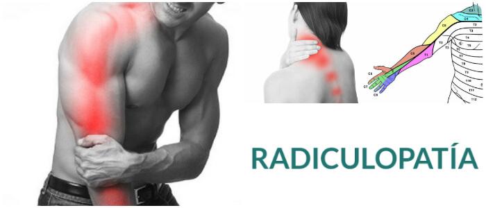 radiculopatía en la columna vertebral