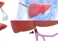 sistema porta hepático formado por