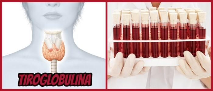 definición de tiroglobulina